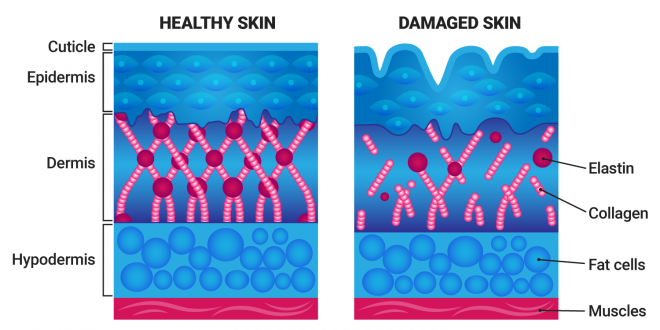 healthy skin vs damaged skin diagram